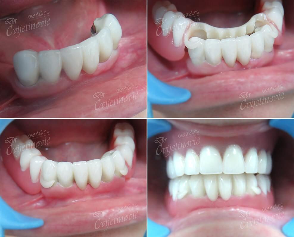 bio dentalplast