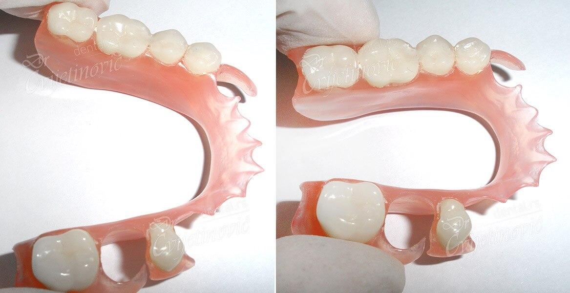 elasticne proteze