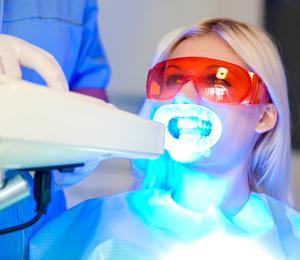 izbeljivanje-zuba-ordinacija-cvijetinovic