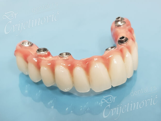 kratki implanti